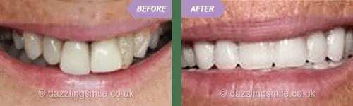 Birmingham dentists St. Paul's Square Dental Practice