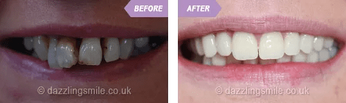 Dentists Birmingham St. Paul's Square Dental Practice
