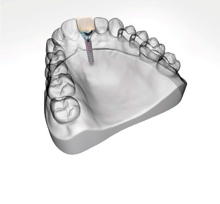 Single Dental Implants in Birmingham