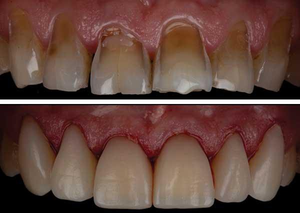 Composite Bonding for bad teeth
