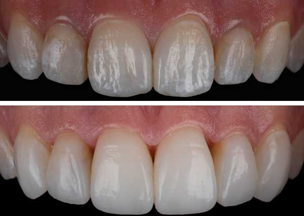 Composite Bonding for coloured teeth