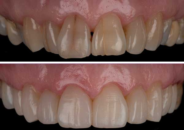 Composite Bonding for Crowded Teeth