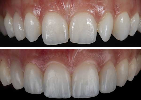 Composite Bonding for spaced teeth