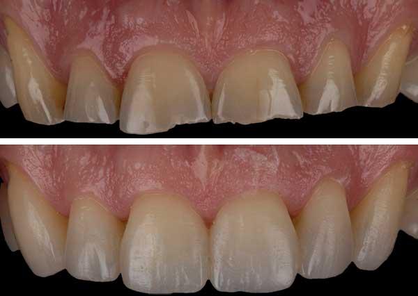 Composite Bonding for broken teeth