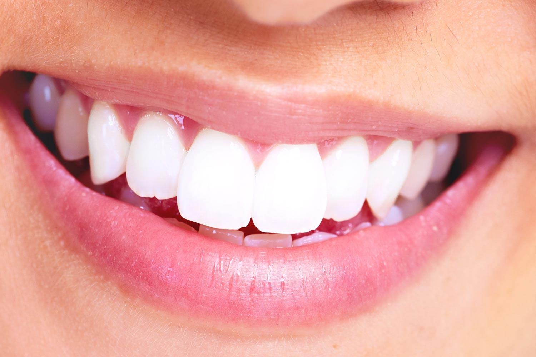 cerec machine Birmingham St Paul´s Dental Practice