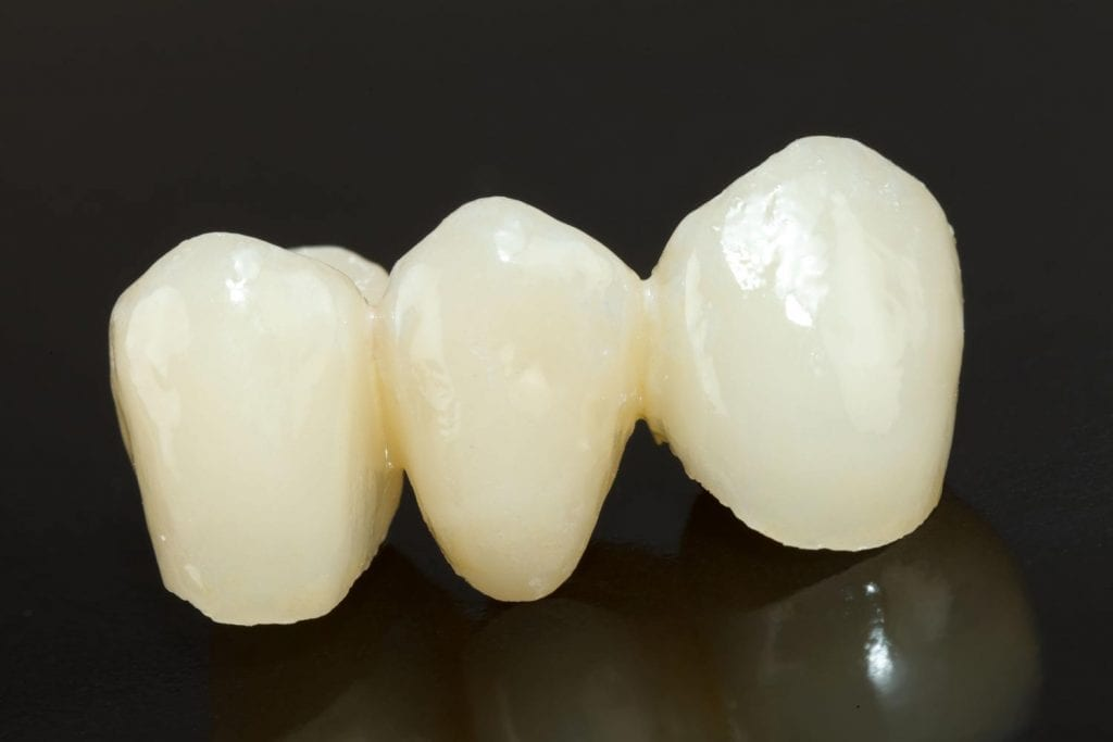 dental bridges in Birmingham