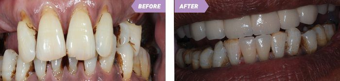 Dental Implant in Birmingham