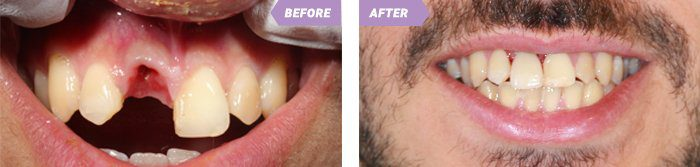 Dental Implant process in Birmingham
