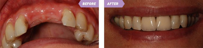 Dental Implants in Birmingham St Paul´s Dental Practice