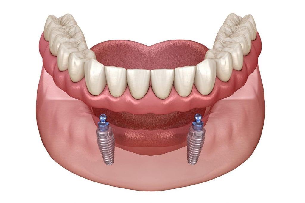 denture stabilisation Birmingham St Paul´s Dental Practice