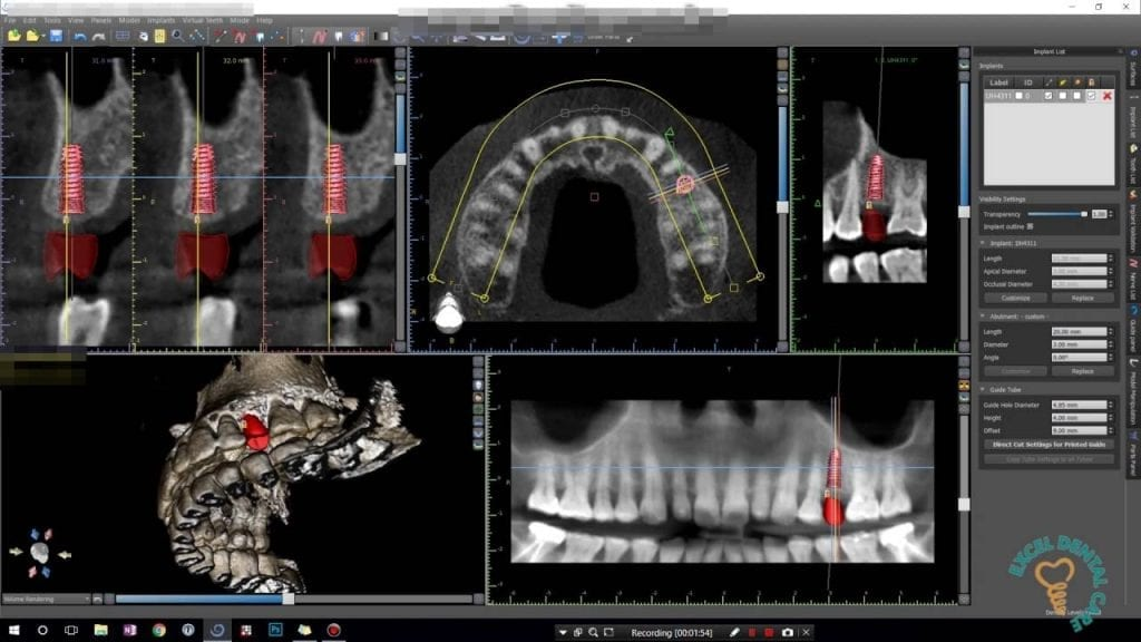 Digitally Guided Implant in Birmingham