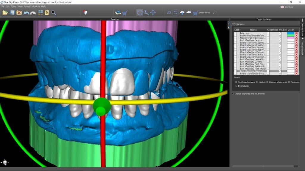 Digitally Guided Implant Placement St Paul´s Square Dental Practice
