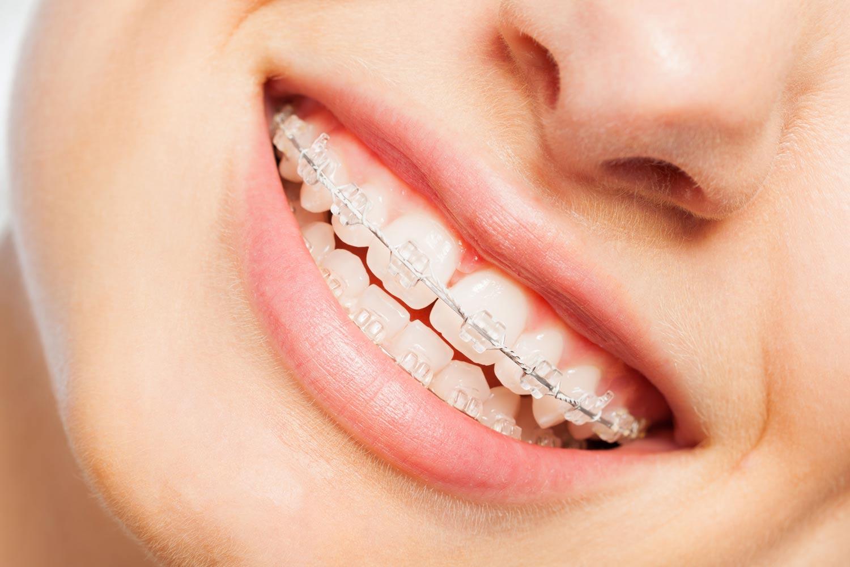 Fast Braces Birmingham St Paul´s Dental Practice