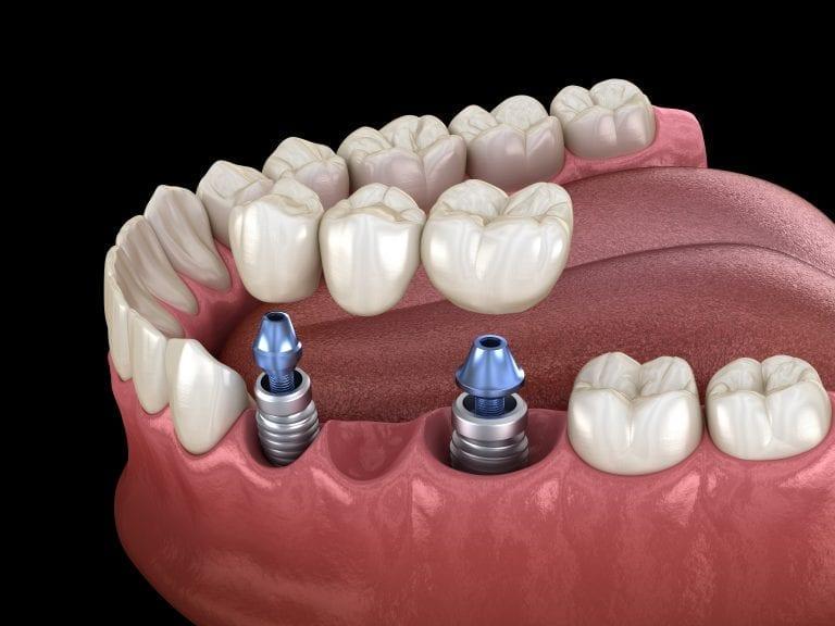 Implant Supported Bridge in Birmingham St Paul Square Dental Practice