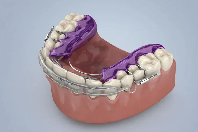 Inman aligner Birmingham St Paul´s Square Dental Practice