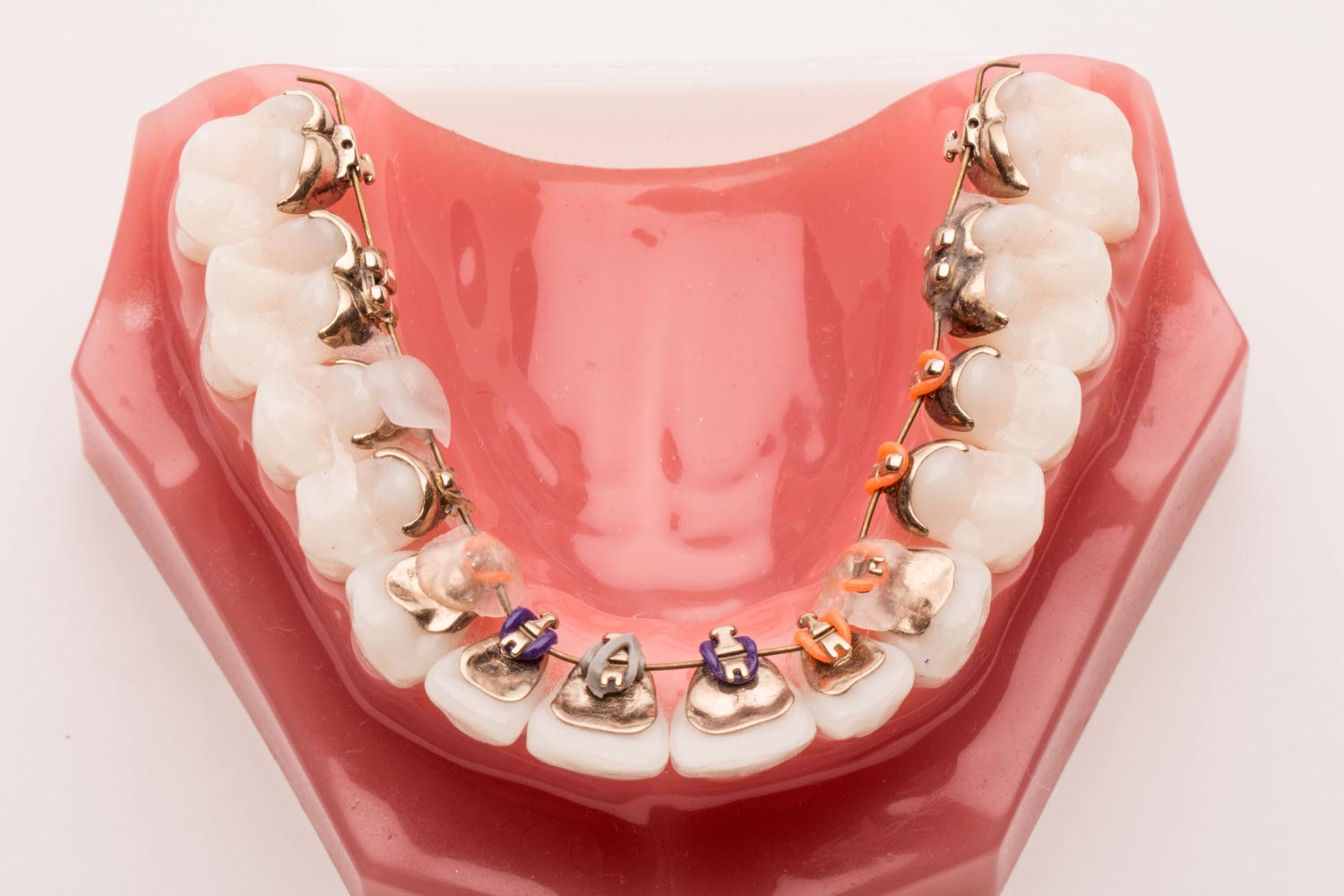 lingual braces in Birmingham St Paul´s Square Dental Practice