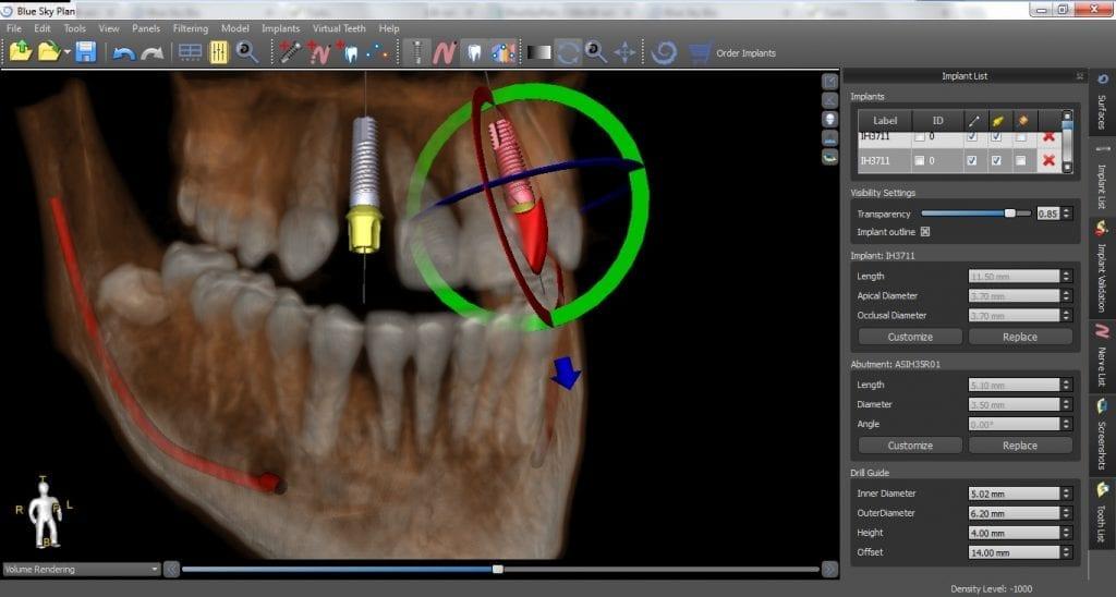 Precise Implant Placement in Birmingham