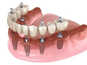 Same Day Dental Implants St Paul´s Square Dental Practice Birmingham