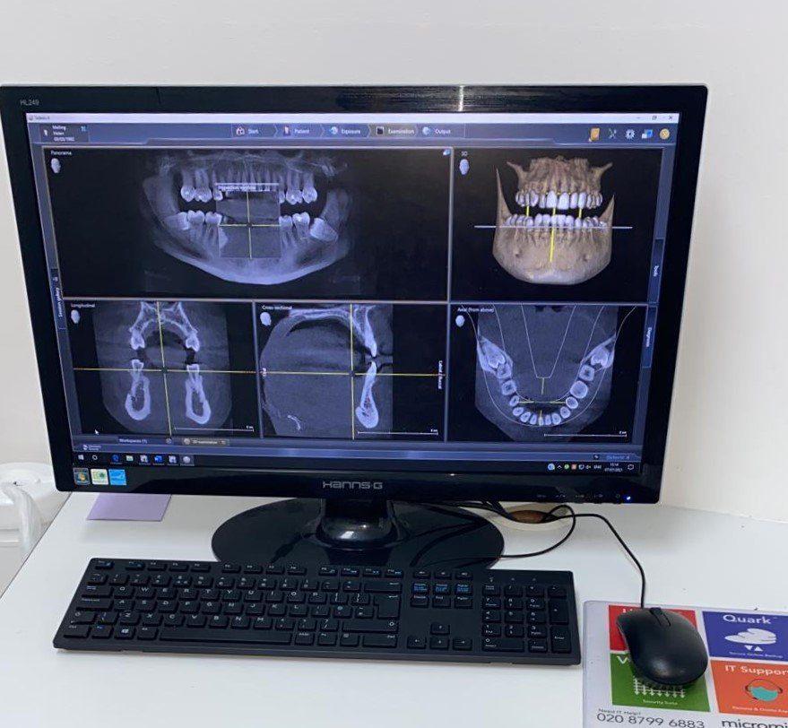 In-house CT Scanner in Birmingham St Paul's Square Dental Practice