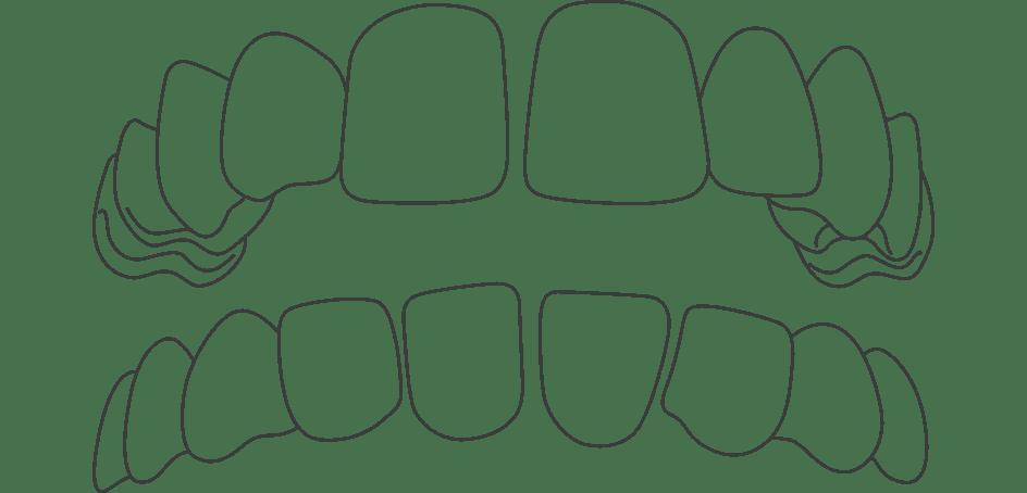Invisalign for Gapped Teeth in Birmingham